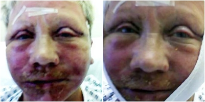 Mặt lồi lõm, suýt chết vì phẫu thuật căng da mặt 4
