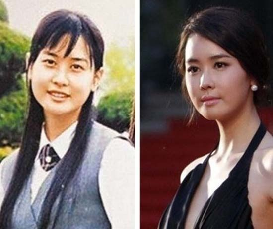 Những kiều nữ Hàn bị biến dạng do phẫu thuật thẩm mỹ 19