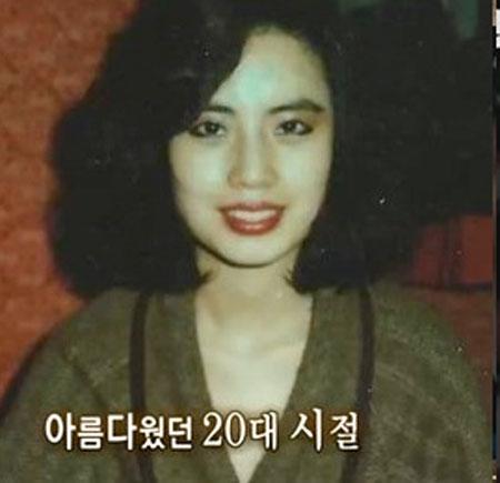 Những kiều nữ Hàn bị biến dạng do phẫu thuật thẩm mỹ 7