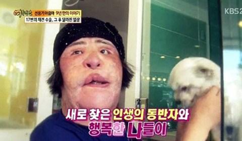 Những kiều nữ Hàn bị biến dạng do phẫu thuật thẩm mỹ 9