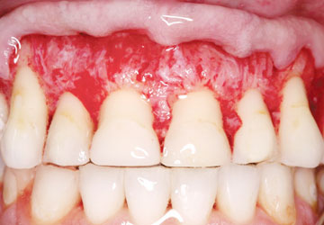 Tác dụng của miếng dán trắng răng - LỢI & HẠI ra sao?? 2
