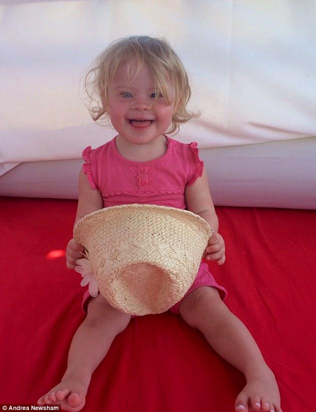 Bé gái mắc bệnh down trở thành mẫu nhí đáng yêu khi mới 2 tuổi 1