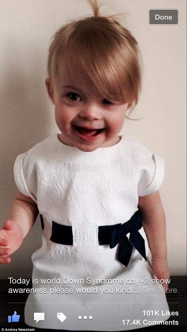 Bé gái mắc bệnh down trở thành mẫu nhí đáng yêu khi mới 2 tuổi