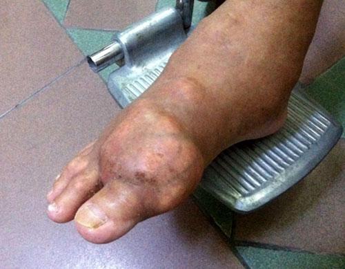 Hỏng hết khớp chân tay vì bệnh gút 1