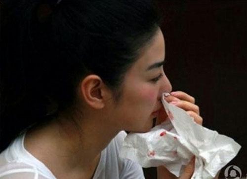 7 nguyên nhân chính khiến bạn bị chảy máu mũi 1