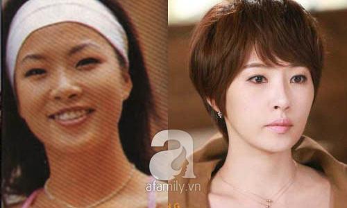 """Những mỹ nhân Hàn đẹp và thành công nhờ... """"dao kéo"""" 25"""