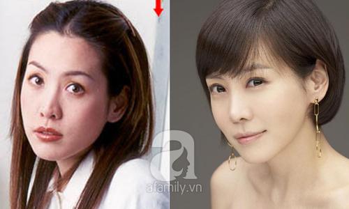"""Những mỹ nhân Hàn đẹp và thành công nhờ... """"dao kéo"""" 28"""