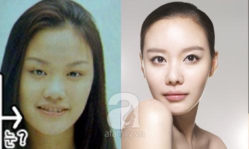 """Những mỹ nhân Hàn đẹp và thành công nhờ... """"dao kéo"""" 33"""