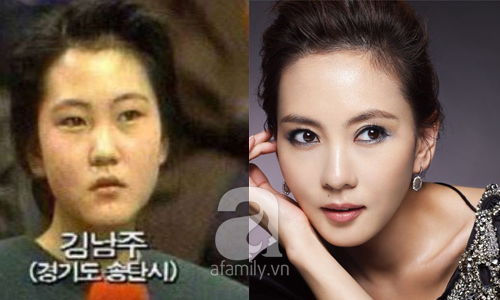 """Những mỹ nhân Hàn đẹp và thành công nhờ... """"dao kéo"""" 4"""
