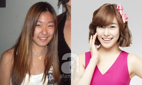 """Những mỹ nhân Hàn đẹp và thành công nhờ... """"dao kéo"""" 7"""