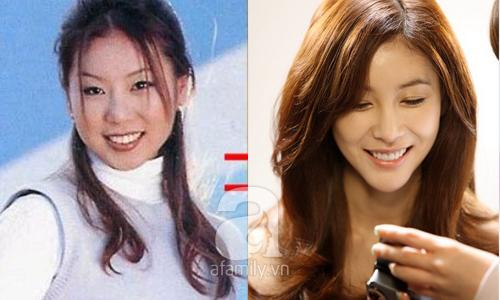 """Những mỹ nhân Hàn đẹp và thành công nhờ... """"dao kéo"""" 16"""