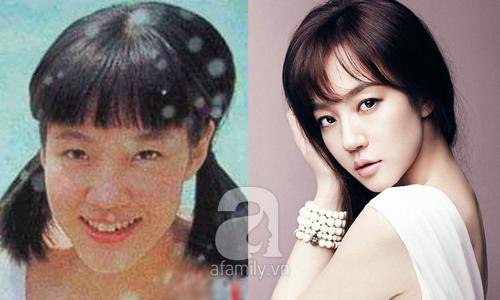 """Những mỹ nhân Hàn đẹp và thành công nhờ... """"dao kéo"""" 19"""