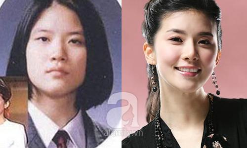 """Những mỹ nhân Hàn đẹp và thành công nhờ... """"dao kéo"""" 22"""