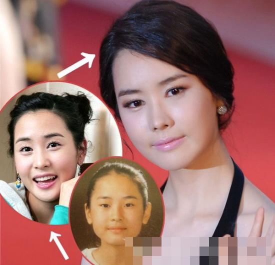 Loạt mỹ nhân Hàn thay đổi vì PTTM trong năm 2012 5