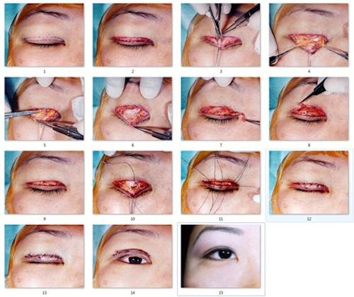 Cận cảnh phẫu thuật cắt mí - Nguy hiểm tiềm tàng 5