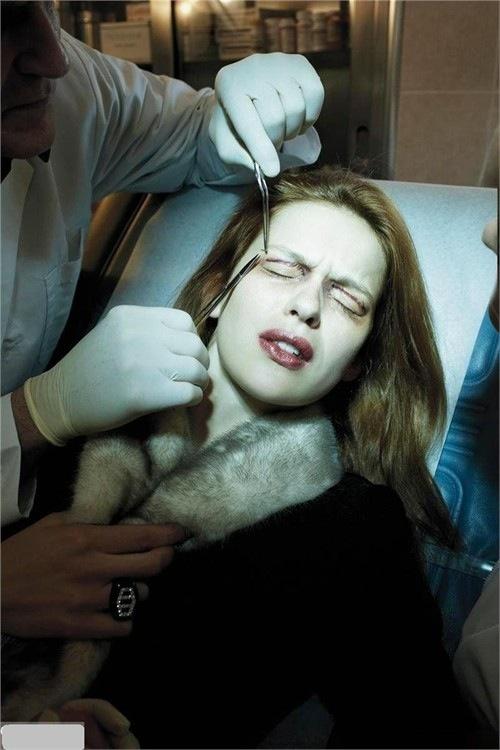 Cận cảnh phẫu thuật cắt mí - Nguy hiểm tiềm tàng 7