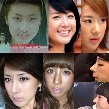 """""""Biểu tượng thời trang"""" xứ Hàn thừa nhận phẫu thuật mũi  2"""
