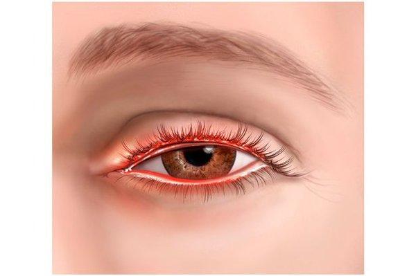 bệnh về mắt của dân văn phòng