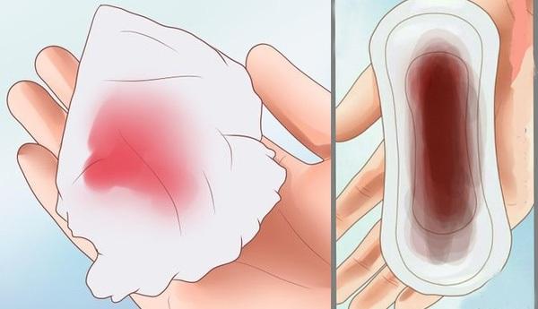 Kết quả hình ảnh cho  Một số trường hợp có màu nâu đen kèm máu