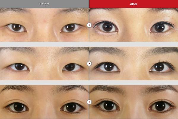 Cận cảnh phương pháp kích mắt to bằng phẫu thuật khóe & đuôi mắt 5