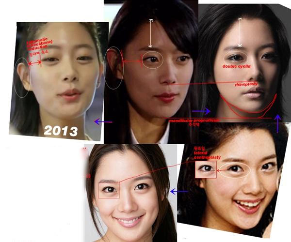 Cận cảnh phương pháp kích mắt to bằng phẫu thuật khóe & đuôi mắt 6