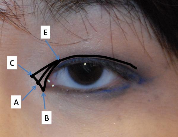 Cận cảnh phương pháp kích mắt to bằng phẫu thuật khóe & đuôi mắt 3