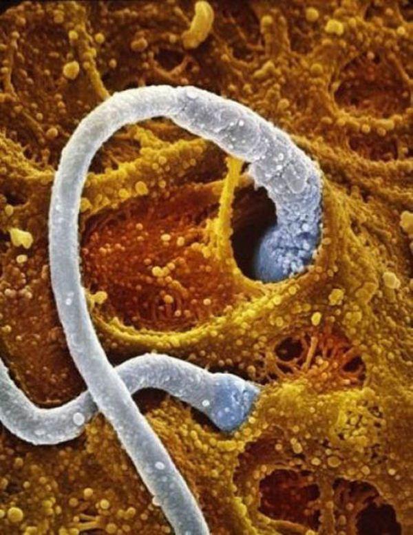 Sự lớn lên kì diệu của bào thai trong bụng mẹ 5