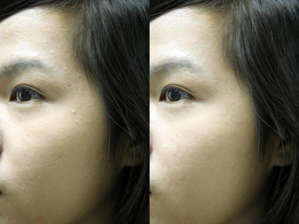 Gel trị mụn Pure skin Spot treatment 10