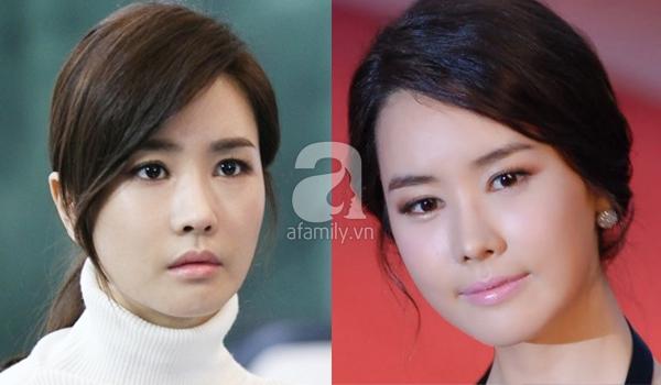 Những kiều nữ Hàn bị biến dạng do phẫu thuật thẩm mỹ 20