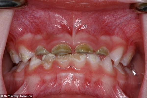 đồ ăn ngọt hại răng