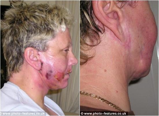 Mặt lồi lõm, suýt chết vì phẫu thuật căng da mặt 5