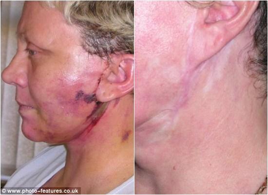 Mặt lồi lõm, suýt chết vì phẫu thuật căng da mặt 6