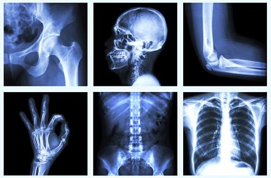 6 điều về sức khỏe của xương không phải bác sĩ nào cũng nói cho bạn biết 1
