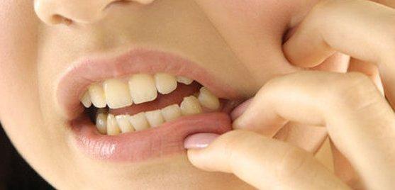 sâu răng 1