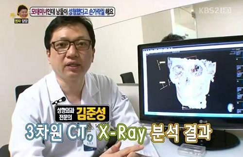 Gương mặt thật gây sốc của các búp bê xinh đẹp xứ Hàn 38