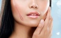 Bí quyết chặn đứng sẹo lồi, sẹo lõm xuất hiện trên làn da phái đẹp
