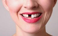 Bạn sẽ không còn lo ngại khi bị mất hẳn răng thật