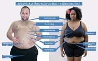 Béo phì làm tăng cao nguy cơ mắc 11 bệnh ung thư