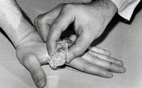 """""""Vật vã"""" vì đau răng, hãy lấy đá lạnh chườm lên tay, hết đau chỉ trong 5 phút"""