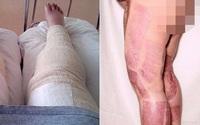 Dọn dẹp vùng bikini, một phụ nữ hôn mê 9 ngày, xém mất hai chân chỉ vì…