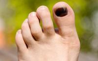 Đen móng chân không chỉ là do tụ máu, nhiều căn bệnh đáng sợ khác được cảnh báo từ dấu hiệu này