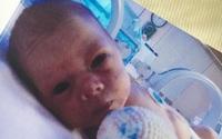 Bác sĩ không tìm được lý do thai nhi tăng trưởng chậm, khi bé ra đời họ đã tìm thấy thứ này
