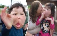 Mắc bệnh hiếm cả bác sĩ cũng chưa đặt tên, bé gái 9 tuổi mang gương mặt khổng lồ biến dạng