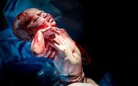 Bức ảnh có 1-0-2: Em bé chào đời với dây rốn quấn quanh bụng