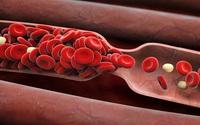 """Những dấu hiệu cảnh báo căn bệnh đông máu đang """"rình rập"""" đe dọa bạn"""