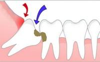 Chẳng biết để làm gì lại hay gây đau đớn nhưng không phải răng khôn nào cũng cần nhổ bỏ