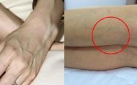 Phụ nữ chớ nên coi thường việc nổi gân xanh trên cơ thể, nhất là trên chân
