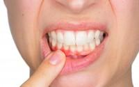 Những căn bệnh chết người từ việc không đánh răng hàng ngày