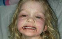 Người mẹ dũng cảm chia sẻ bức ảnh gây sốc của con gái, phụ huynh khác tá hỏa khi biết nguyên nhân thật sự