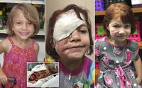 """Bị chó cắn đến nát mặt, cô bé 6 tuổi mỗi ngày đều phải chụp ảnh """"tự sướng"""" để học cách chấp nhận diện mạo mới của mình"""